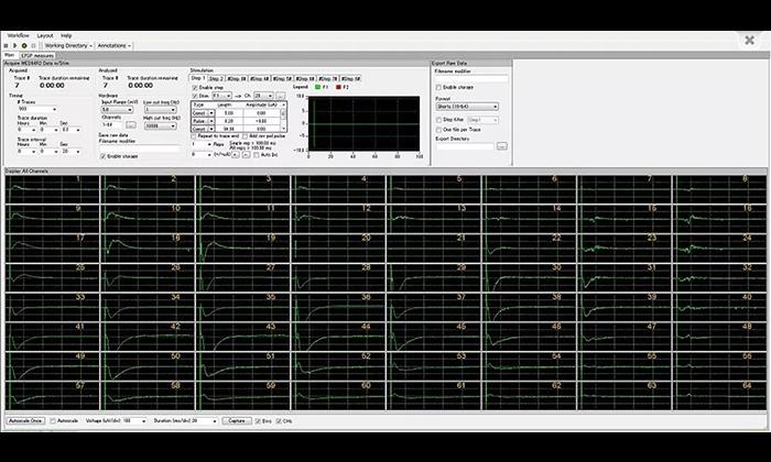 MED64 Mobius Software Digitimer 1